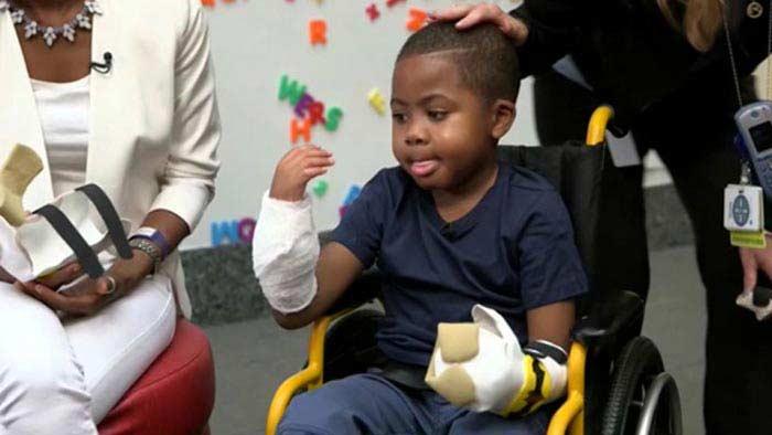 Пересадка кистей рук 8-летнему мальчику