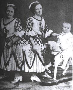Сиамские близнецы Роза и Джозефа Блажек