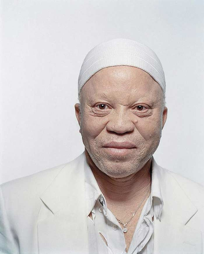 Альбинос Человек